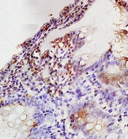 Immunohistochemical analysis of formalin fixed and paraffin embedded rat colon tissue using MAPK3 antibody