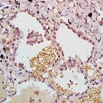 Immunohistochemical analysis of formalin-fixed and paraffin embedded human lung carcinoma tissue (dilution at:1:200) using MASP antibody