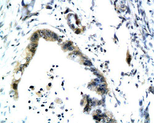 IHC-P of human colonic tissue (Maspin antibody at 1:200)
