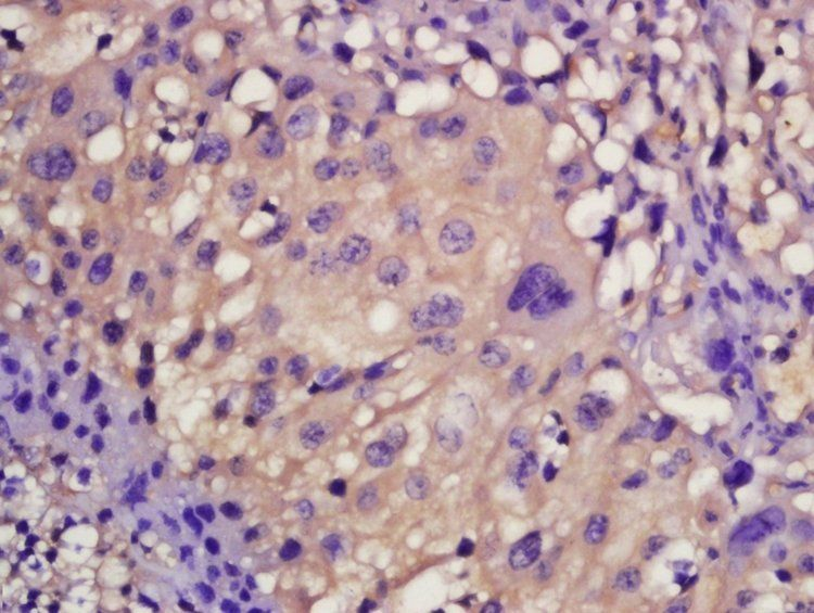 Immunohistochemical analysis of formalin-fixed and paraffin-embedded mouse placenta tissue using Mast Cell Chymase antibody (dilution at: 1:200)