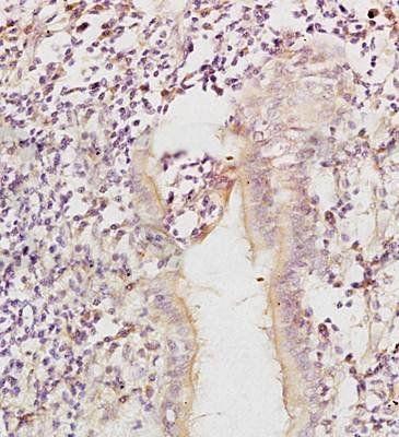 IHC-P of rat exfoliated cells (MCSF antibody at 1:300)