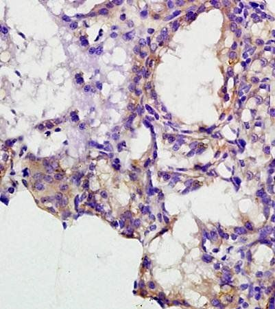 Immunohistochemical analysis of formalin fixed and paraffin embedded human lung carcinoma using MCSF antibody
