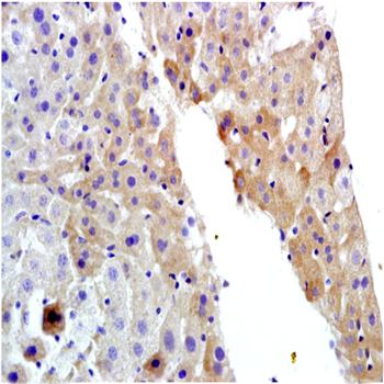 Paraffin-embedded rat liver tissue fixed with 4% paraformaldehyde. Antigen retrieval by boiling with citrate buffer. Blocking buffer is goat serum (37 degrees for 20 min.). MDR1 antibody at 1:200 dilution with overnight incubation at 4 degrees