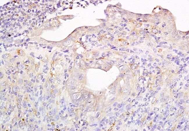 Immunohistochemical analysis of formalin-fixed and paraffin-embedded mouse colon carcinoma tissue using Metallothionein antibody (dilution at: 1:200)