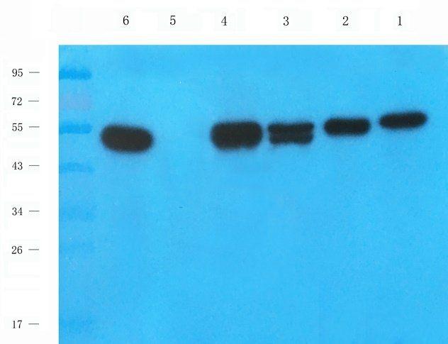 WB analysis of rat heart (lane 1), mouse stomach (lane 2), rat liver (lane 3), rat spleen (lane 4), rat lung (lane 5), human breast cancer (lane 6) using Mlkl antibody (1 ug/ml)