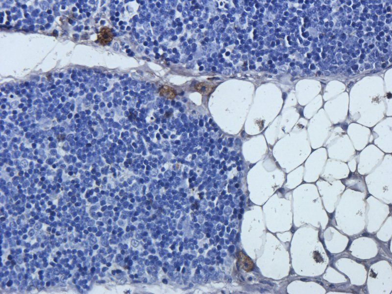 Immunohistochemical staining of paraffin embedded rat thymus tissue using anti-Mlkl (2.5 ug/ml)