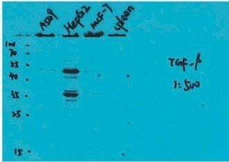 Western Blot on cells and tissues using MMP9  antibody (working concentration: 2 ug/ml)