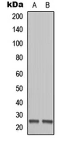 Western blot analysis of Ramos (Lane1), HEK293T (Lane2) whole cell using MOB1B antibody