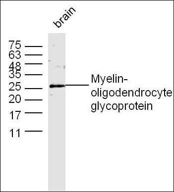 Western blot analysis of Mouse brain tissue (Lane 1) using MOG antibody.