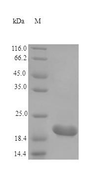 SDS-PAGE analysis of Mouse CTF1 protein (Active)