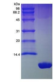 SDS-PAGE analysis of Mouse GRO/KC protein
