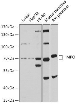 Western blot analysis of extracts of various cell lines lysates using MPO antibody