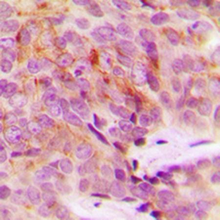 Immunohistochemical analysis of formalin-fixed and paraffin-embedded human breast cancer tissue using MRPS18A antibody