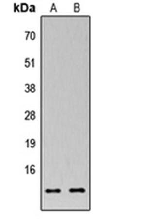 Western blot analysis of HEK293T (Lane1), Raw264.7 (Lane2) whole cell using MRPS33 antibody