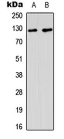Western blot analysis of A549 (Lane1), HeLa (Lane2) whole cell using MSH3 antibody