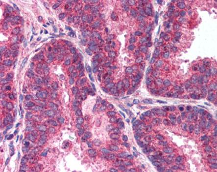 Immunohistochemical staining of paraffin embedded human testis tissue using MTOR antibody (primary antibody at 1:200)