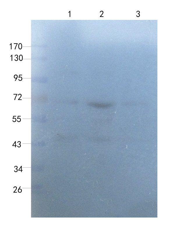 Western blot analysis of rat thyroid (lane 1), rat uterus (lane 2), rat ovary (lane 3) using Myeloperoxidase antibody (1 ug/ml)