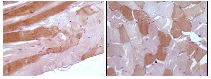 Immunohistochemical analysis of paraffin-embedded human skeletal muscle tissue  using Myoglobin antibody