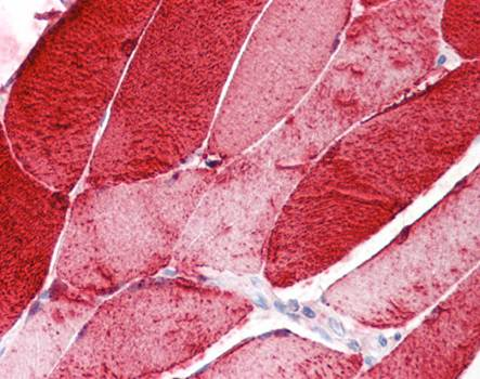 Immunohistochemical staining of paraffin embedded human skeletal muscle tissue using Myoglobin antibody (primary antibody at 1:200)