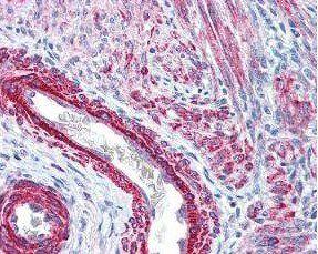Immunohistochemical staining of variety of tissues including multi-human, multi-brain and multi-cancer slides using Myosin phospho S19 antibody