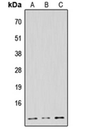 Western blot analysis of HeLa (Lane1), Raw264.7 (Lane2), H9C2 (Lane3) whole cell using NDUFB1 antibody
