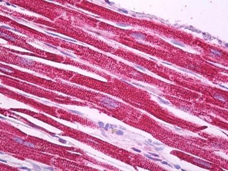 Immunohistochemical staining of paraffin embedded human heart tissue using NDUFS1 antibody (primary antibody at 1:200)
