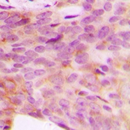 Immunohistochemical analysis of formalin-fixed and paraffin-embedded human breast cancer tissue using NDUFV3 antibody