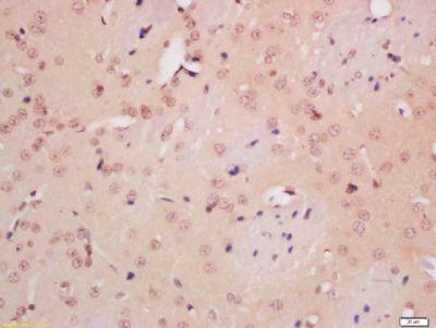 Immunohistochemical staining of rat brain tissue using NeuN antibody.