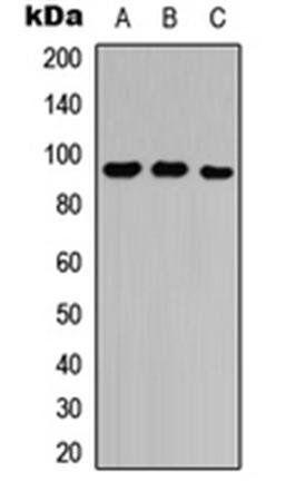 Western blot analysis of A549 (Lane1), Raw264.7 (Lane2), rat lung (Lane3) whole cell using Neuropilin 2 antibody