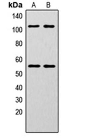 Western blot analysis of HeLa (Lane1), MCF7 (Lane2) whole cell using NF-kappaB p105/p50 (phospho-S337) antibody