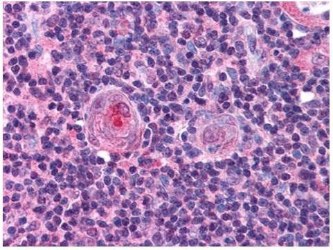 Immunohistochemical staining of human thymus tissue using NF-Y antibody