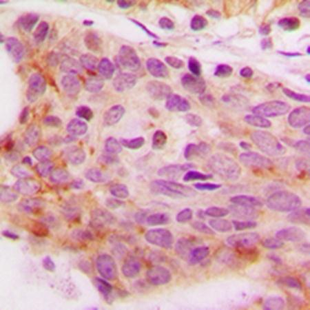 Immunohistochemical analysis of formalin-fixed and paraffin-embedded human breast cancer tissue using NFAT4 (phospho-S165) antibody