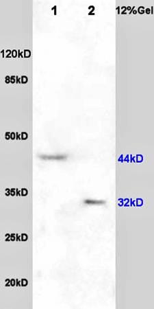 Western blot analysis of human rat brain lysates(Lane1),rat heart lysates(Lane2) using NGF Receptor antibody