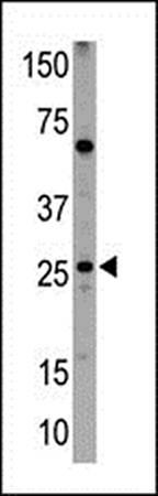 Western blot analysis of NIP1 antibody in HL60 cell lysates