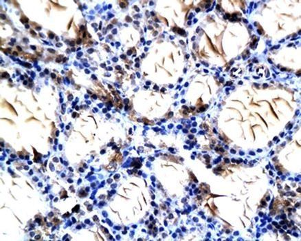 Immunohistochemical analysis of paraffin-embedded thyroid gland tissue in rat using NIS antibody