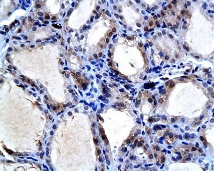 IHC-P of  thyroid gland tissue in rat (NIS antibody at 1:200)