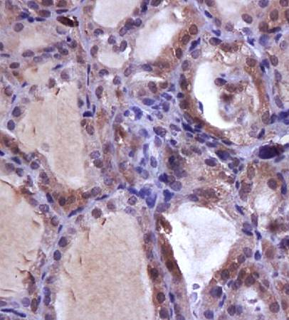 Immunohistochemical analysis of formalin fixed and paraffin embedded rat thyroid gland using NIS antibody