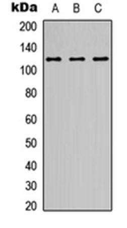 Western blot analysis of A549 (Lane1), Y79 (Lane2), Raji (Lane3) whole cell using NMDAR1 antibody