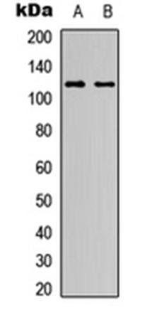 Western blot analysis of HeLa (Lane1), NIH3T3 (Lane2) whole cell using NOTCH1 antibody