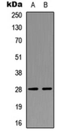 Western blot analysis of SKNSH (Lane1), Jurkat (Lane2) whole cell using NPDC1 antibody