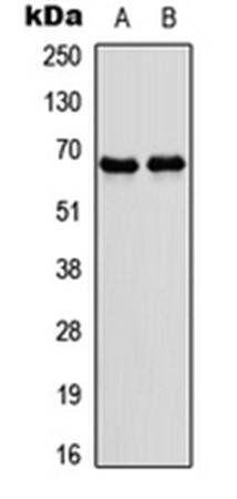 Western blot analysis of IMR32 (Lane1), rat skeletal muscle (Lane2) whole cell using NR4A3 antibody