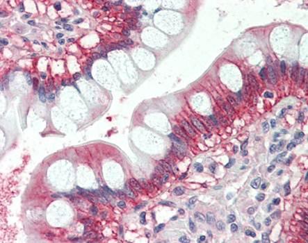 Immunohistochemical staining of paraffin embedded human small intestine tissue using NRAS antibody (primary antibody at 1:200)