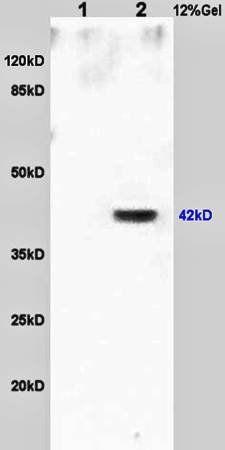 Western blot analysis of rat brain lysates(Lane1),human colon carcinoma lysates(Lane2) using OCT4 antibody