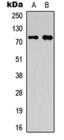 Western blot analysis of HepG2 (Lane1), A549 (Lane2) whole cell using OLFML2A antibody