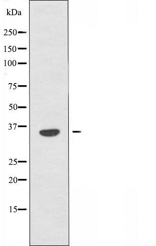Western blot analysis of COLO cells and HepG2 cells using OR4A15 antibody