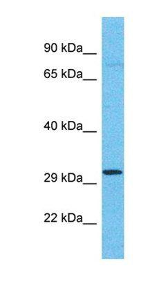 Western blot analysis of human 721_B tissue using OR4C11 antibody