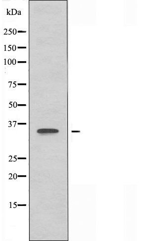 Western blot analysis of HeLa cells and HepG2 cells using OR4C6 antibody