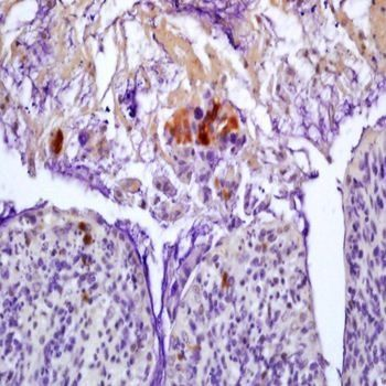 Immunohistochemical analysis of formalin-fixed paraffin embedded mouse colitis tissue using Cytomegalovirus PP65 antibody