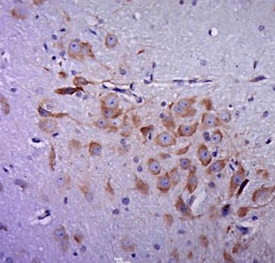 Immunohistochemical staining of Rat brain using Dopamine Transporter antibody