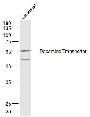 Western blot analysis of Mouse Cerebrum Lysate using Dopamine Transporter antibody.